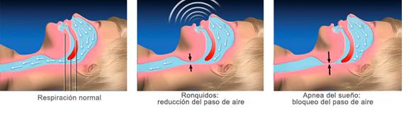 apnea del sueño causas