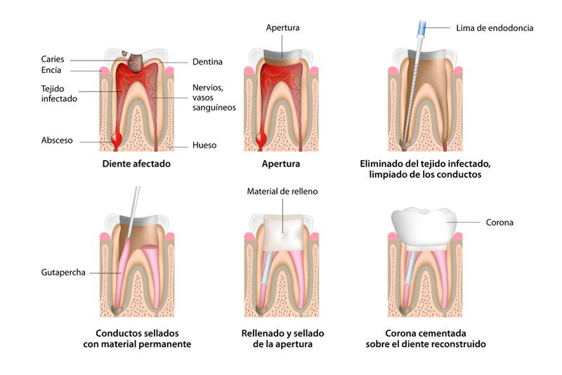 como se hace una endodoncia