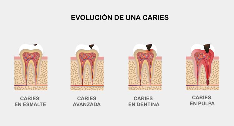 evolucion de la caries