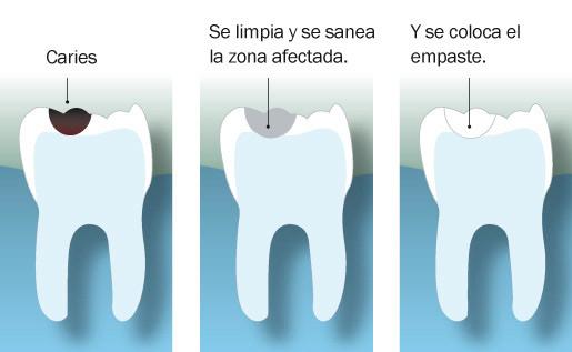 que es un empaste dental