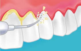 limpieza bucal por ultrasonidos